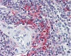 Immunohistochemistry (Formalin/PFA-fixed paraffin-embedded sections) - Anti-VAV3 antibody (ab118904)