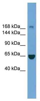 Western blot - Anti-ZCH11 antibody (ab118917)