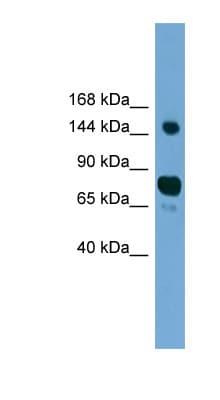 Western blot - Anti-AGTPBP1 antibody (ab118920)