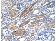 Immunohistochemistry (Formalin/PFA-fixed paraffin-embedded sections) - Anti-KIAA0319 antibody (ab118923)