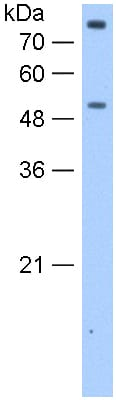 Western blot - Anti-FCRL1 antibody (ab118930)