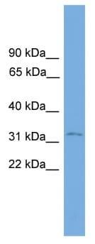 Western blot - Anti-PRSS21 antibody (ab118940)