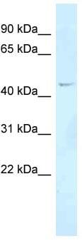 Western blot - Anti-FOXN2 antibody (ab118942)