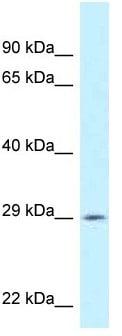 Western blot - Anti-Spic antibody (ab118953)