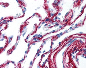 Immunohistochemistry (Formalin/PFA-fixed paraffin-embedded sections) - Anti-Collagen VI antibody (ab118955)