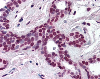Immunohistochemistry (Formalin/PFA-fixed paraffin-embedded sections) - Anti-Cullin 3 antibody (ab118960)