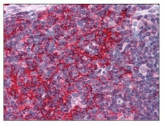 Immunohistochemistry (Formalin/PFA-fixed paraffin-embedded sections) - Anti-EFHD2 antibody (ab119119)