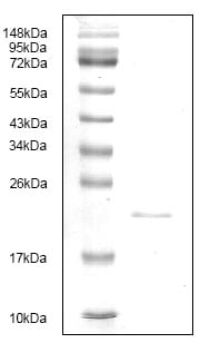 SDS-PAGE - CD40L protein (His tag) (ab119150)