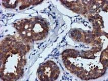 Immunohistochemistry (Formalin/PFA-fixed paraffin-embedded sections) - Anti-FGFR2 antibody [3F8] (ab119237)
