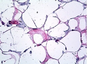 Immunohistochemistry (Formalin/PFA-fixed paraffin-embedded sections) - Anti-Endostatin antibody (ab119279)