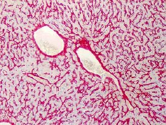 Immunohistochemistry (Formalin/PFA-fixed paraffin-embedded sections) - Anti-Collagen VI antibody (Biotin) (ab119300)