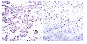 Immunohistochemistry (Formalin/PFA-fixed paraffin-embedded sections) - Anti-STAT6 (phospho T645) antibody (ab119326)
