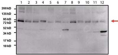 Western blot - Anti-STAT3 antibody [9D8] (ab119352)