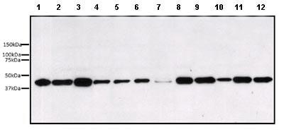 Western blot - Anti-ERK1 antibody [12D11] (ab119357)