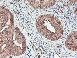 Immunohistochemistry (Formalin/PFA-fixed paraffin-embedded sections) - Anti-SerpinB6 antibody [2F8] (ab119393)