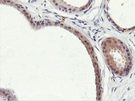 Immunohistochemistry (Formalin/PFA-fixed paraffin-embedded sections) - Anti-PNPO antibody [1H9] (ab119395)