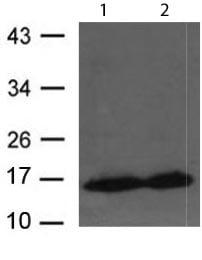 Western blot - Anti-CRABP2 antibody (ab119408)