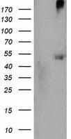 Western blot - Anti-CARKL antibody [3D7] (ab119415)