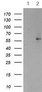 Western blot - Anti-PPAR alpha antibody [1E8] (ab119416)