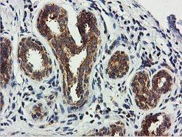 Immunohistochemistry (Formalin/PFA-fixed paraffin-embedded sections) - Anti-USP10 antibody [2E1] (ab119418)