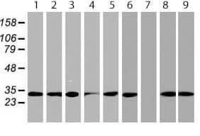 Western blot - Anti-PSMA4 antibody [1H10] (ab119419)