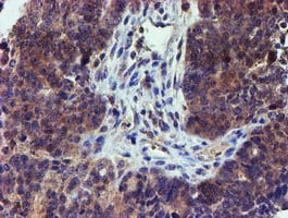 Immunohistochemistry (Formalin/PFA-fixed paraffin-embedded sections) - Anti-LECT2 antibody [2A11] (ab119429)