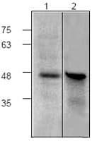 Western blot - Anti-CBP Tag antibody (ab119488)