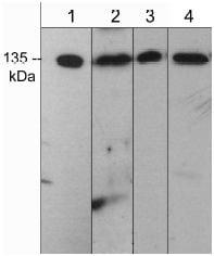 Western blot - Anti-DIAPH2 antibody (ab119702)