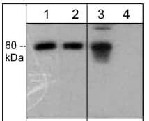 Western blot - Anti-CORO1B (phospho S2) antibody (ab119705)