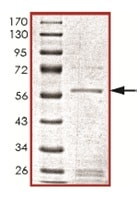 SDS-PAGE - p35 protein (ab119724)