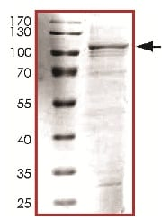 SDS-PAGE - TPX2 protein (ab119735)