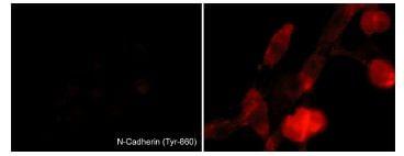 Immunocytochemistry - Anti-N Cadherin (phospho Y860) antibody (ab119752)