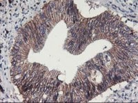 Immunohistochemistry (Formalin/PFA-fixed paraffin-embedded sections) - Anti-15 Lipoxygenase 1 antibody [3G8] (ab119774)