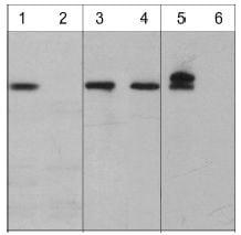 Western blot - Anti-ATM (phospho S794) antibody (ab119799)