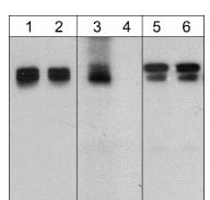 Western blot - Anti-beta Catenin (phospho Y489) antibody (ab119801)