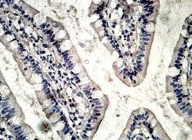 Immunohistochemistry (Formalin/PFA-fixed paraffin-embedded sections) - Anti-Two pore calcium channel protein 2 antibody (ab119915)