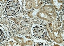 Immunohistochemistry (Formalin/PFA-fixed paraffin-embedded sections) - Anti-Alpha Taxilin antibody (ab119924)
