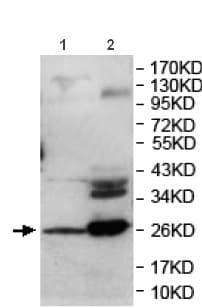 Western blot - Anti-DUSP13 antibody (ab119926)