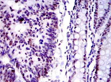 Immunohistochemistry (Formalin/PFA-fixed paraffin-embedded sections) - Anti-Ku80 antibody [5C5] (ab119935)