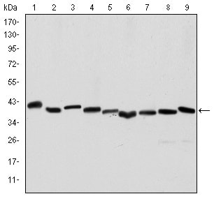 Western blot - Anti-alpha smooth muscle Actin antibody [4A4] (ab119952)