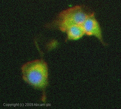 Immunocytochemistry/ Immunofluorescence - Presenilin 1 antibody (ab12272)