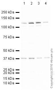 Western blot - Cdc4 / Fbw7 / hSel 10 antibody (ab12292)