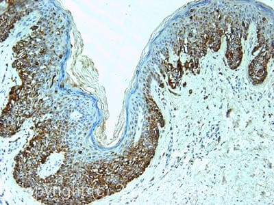Immunohistochemistry (Formalin/PFA-fixed paraffin-embedded sections)-Melanoma antibody [PNL2](ab12502)