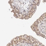 Immunohistochemistry (Formalin/PFA-fixed paraffin-embedded sections) - Anti-KLHDC7B antibody (ab121102)
