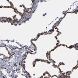 Immunohistochemistry (Formalin/PFA-fixed paraffin-embedded sections) - Anti-MAGEB10 antibody (ab121107)