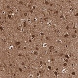 Immunohistochemistry (Formalin/PFA-fixed paraffin-embedded sections) - Anti-TECPR2 antibody (ab121109)
