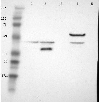 Western blot - Anti-Acyl-coenzyme A Thioesterase 4 antibody (ab121116)
