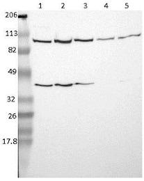 Western blot - Anti-USP51 antibody (ab121147)