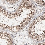 Immunohistochemistry (Formalin/PFA-fixed paraffin-embedded sections) - Anti-C6orf211 antibody (ab121158)