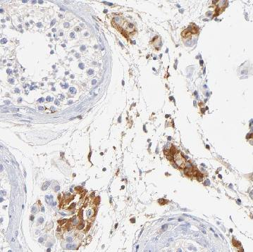 Immunohistochemistry (Formalin/PFA-fixed paraffin-embedded sections) - Anti-MDGA2 antibody (ab121164)